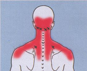 αυχενικο συνδρομο και πονοκεφαλοσ