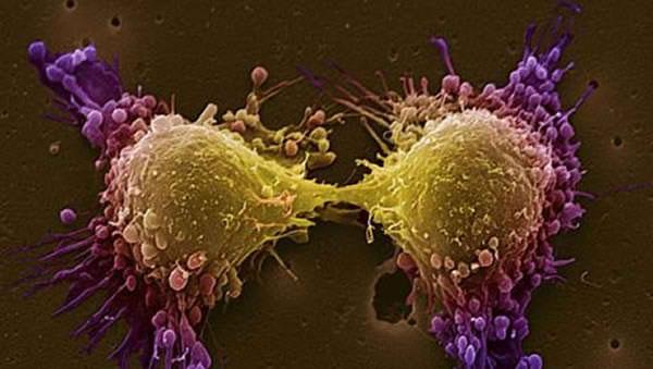 κατεστρεψαν καρκινικα κυτταρα με γονιδιακη θεραπεια